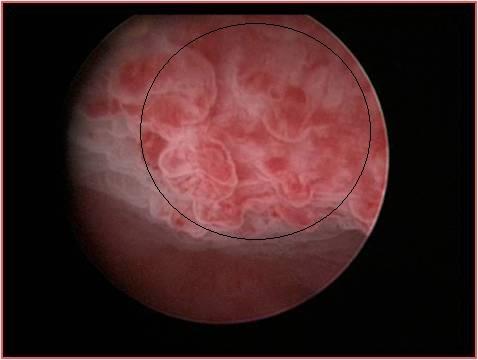 Гіперплазія ендометрію